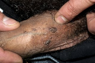 warts and pregnancy nhs)