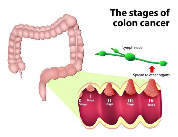 Metastatic cancer of the colon survival rate. Introduction