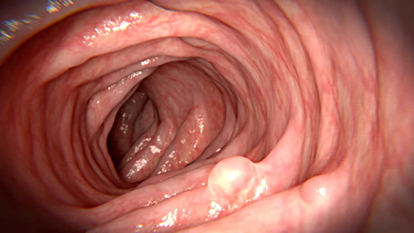 rectal cancer untreated)