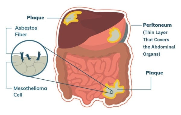 peritoneal cancer from asbestos)