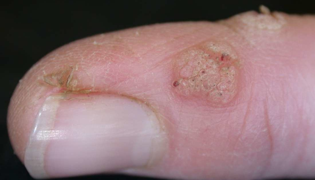 Wart on foot keeps coming back
