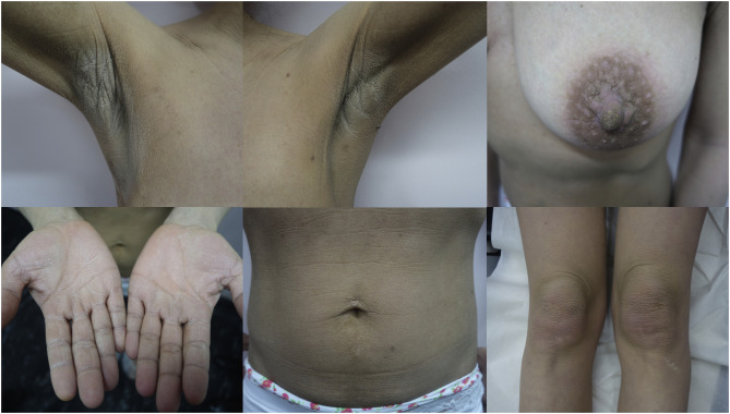 gastric cancer acanthosis nigricans)