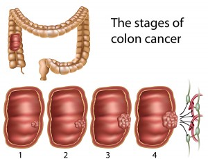 hemorrhoids cancer colon)