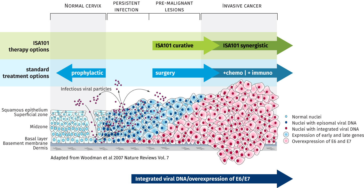 Hpv cancer review, February 2015 ACIP- Human Papillomavirus (HPV) Vaccine is a papilloma a tumor