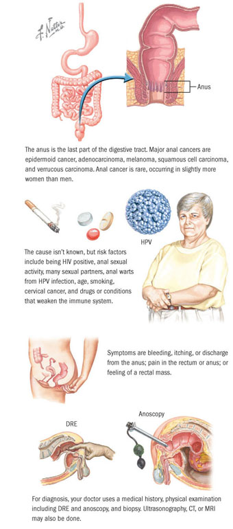 Hpv and bowel cancer, Can hpv cause colon cancer