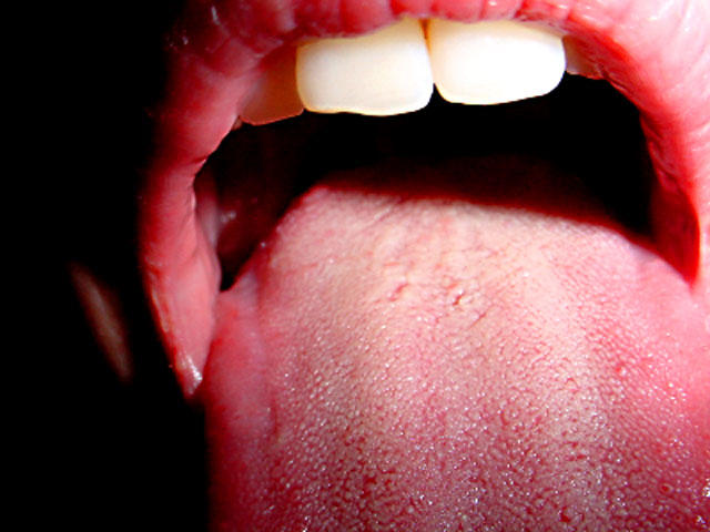 hpv on tongue symptoms