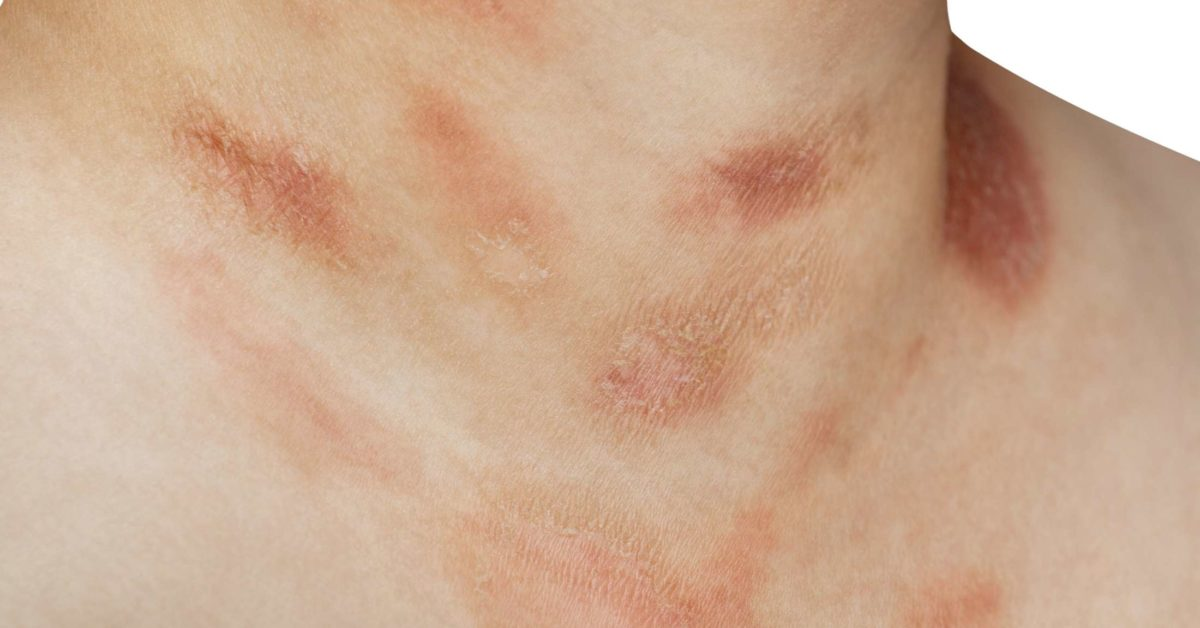 hpv skin rash on arms and torso)