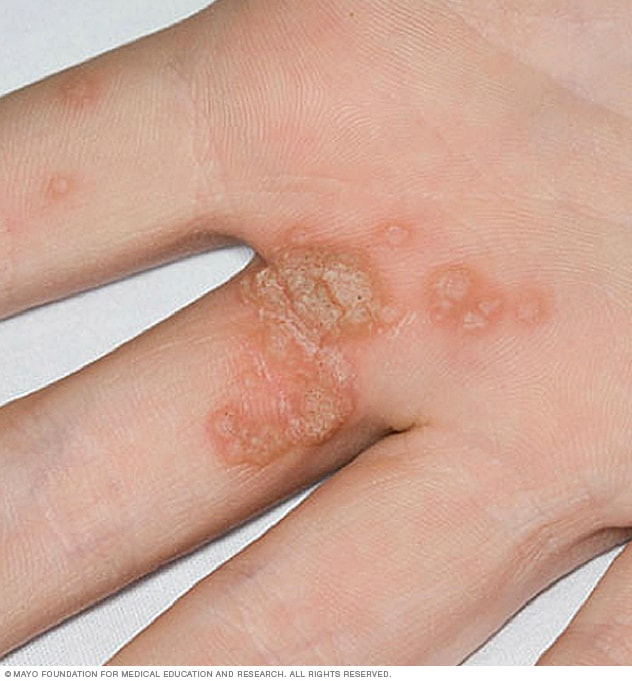 hpv that causes warts on hands