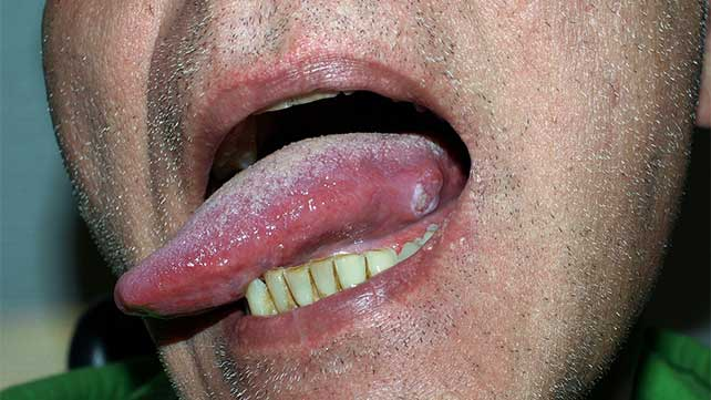 hpv under the tongue)