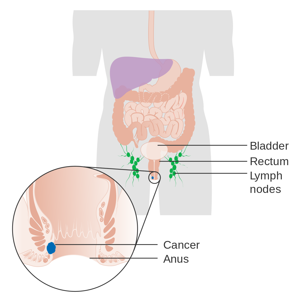 Hpv virus and swollen lymph nodes.