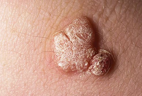 hpv warts elbow)