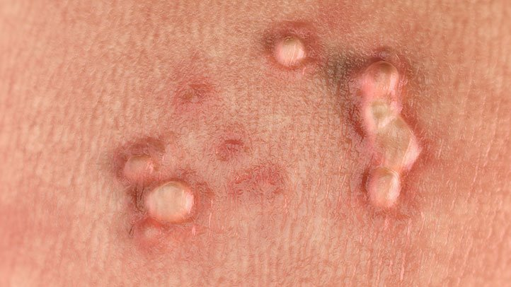 hpv warts time period