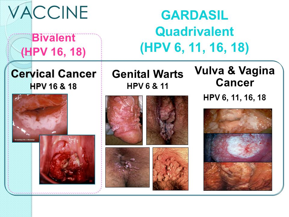 is hpv genital warts cancer)