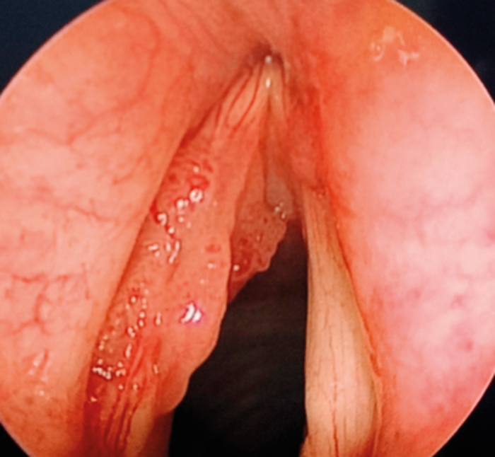 laryngeal papilloma what is it