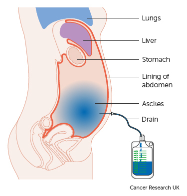 ovarian cancer abdominal drain)
