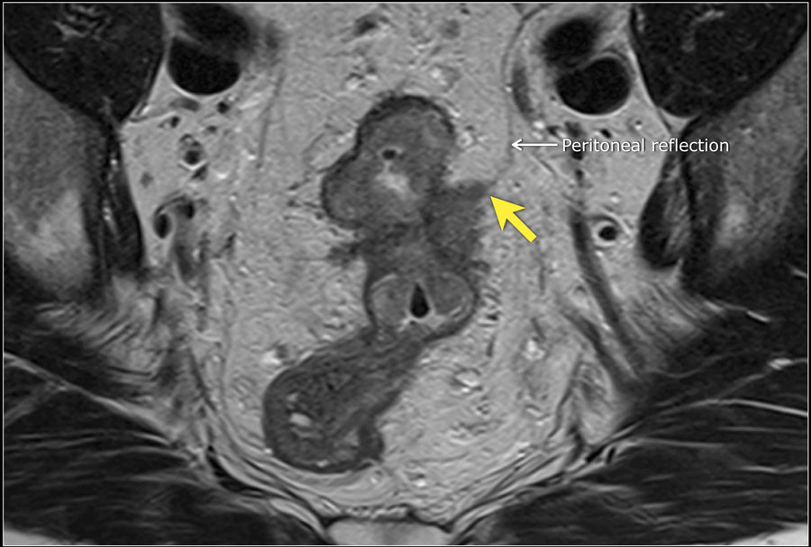 Cancerul de Col Uterin Rectosigmoid cancer mri - Rectosigmoid cancer mri