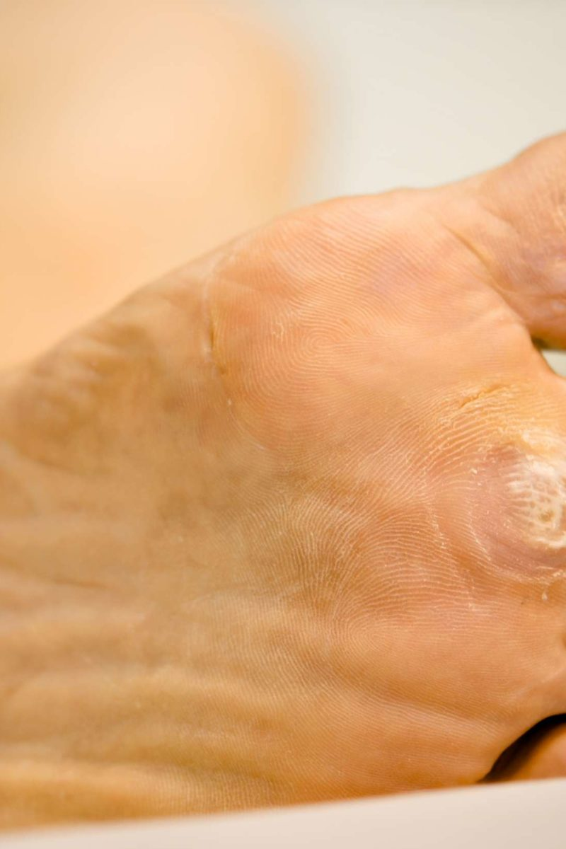 Foot wart how to remove