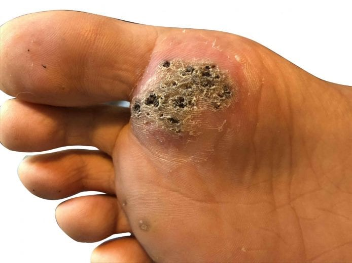 wart on the foot removal