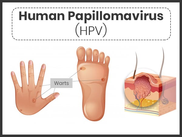 Hpv wart treatments. Planters Wart Home Remedy human papillomavirus (hpv) cancer