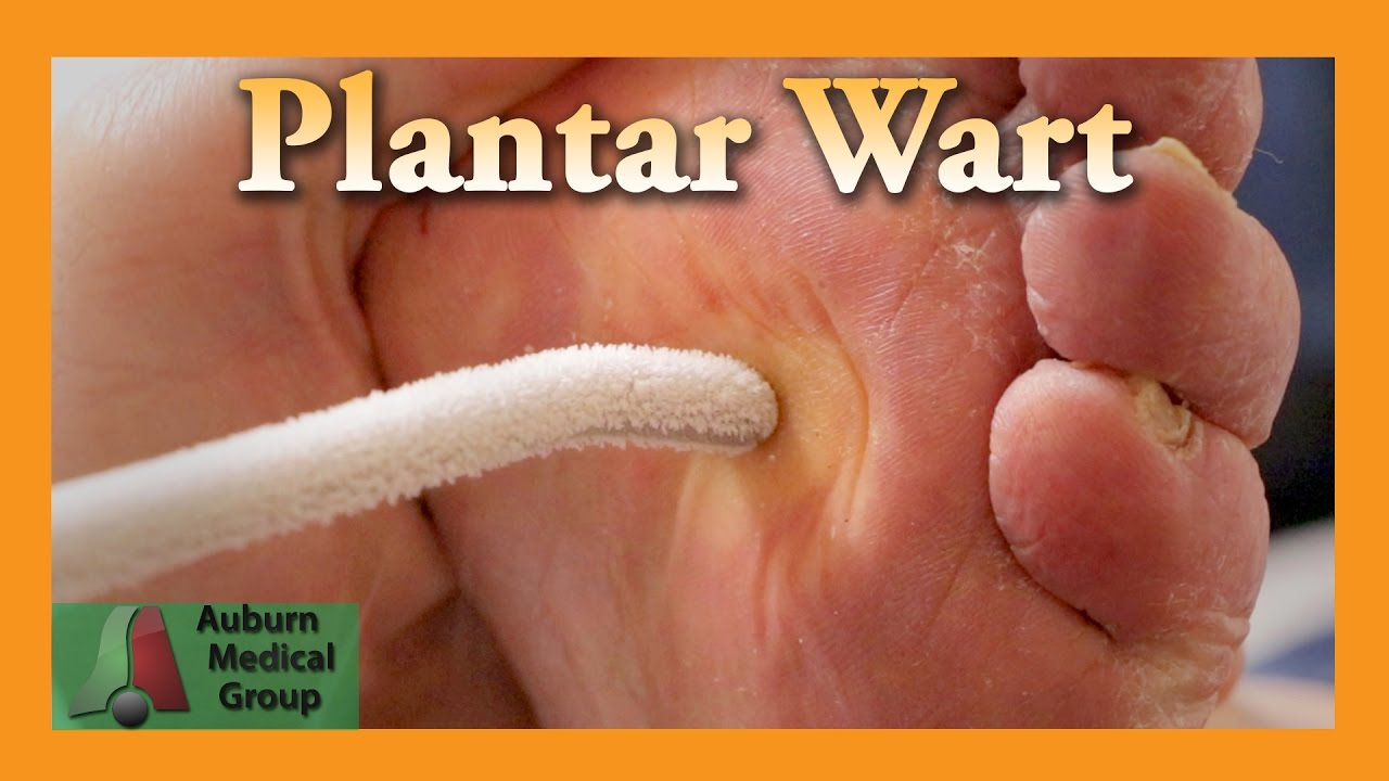 warts and treatment)