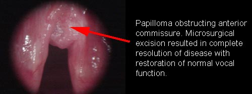 laryngeal papilloma therapy)