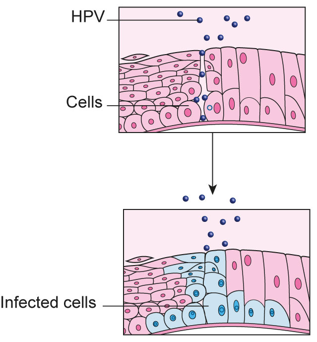 hpv causes abnormal cells
