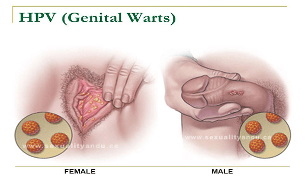 is hpv genital warts cancer