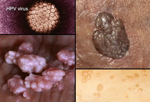 herpes and hpv